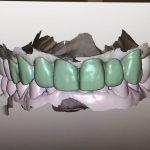 caso-clinico-complesso-dentista-mirandola-4